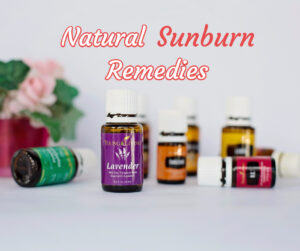 Make Your Own Sunburn Products